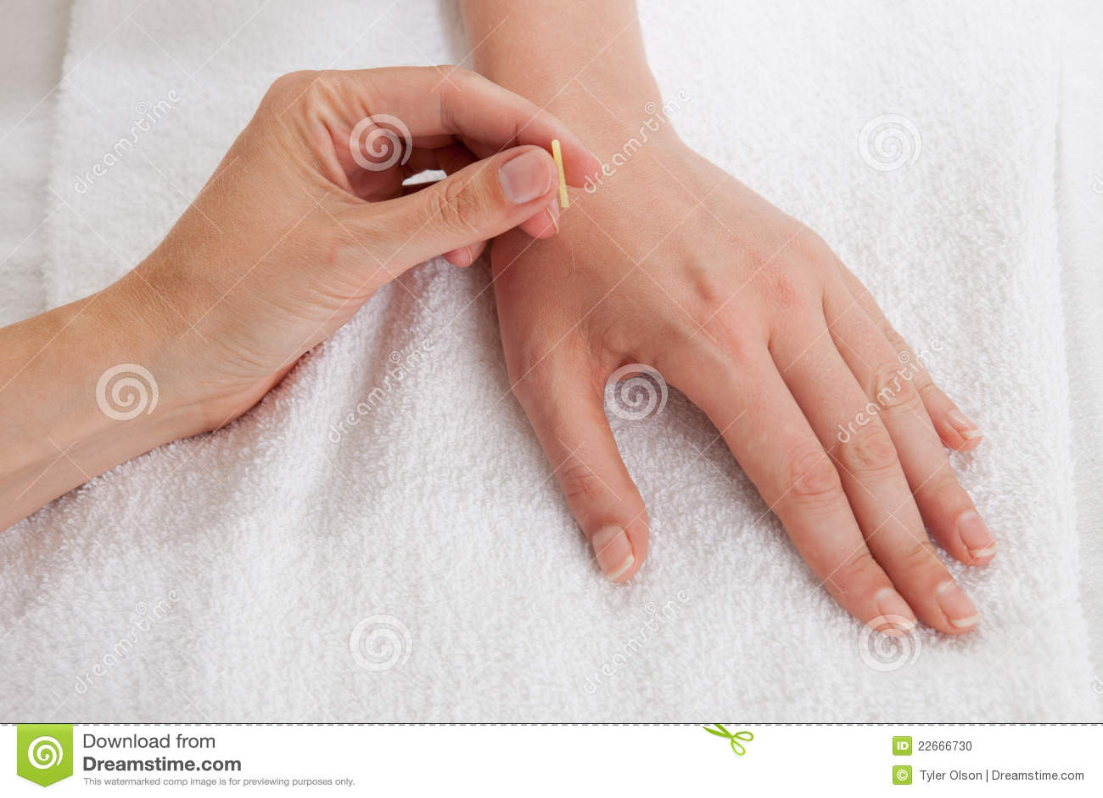 behandeling voetschimmel