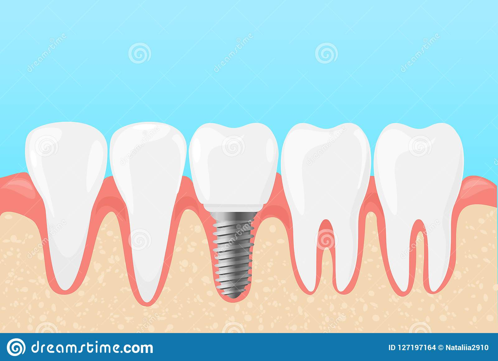 Dirigez l illustration des dents humaines et de l implant dentaire Le concept de dentistes de médecine des dents s inquiètent dan
