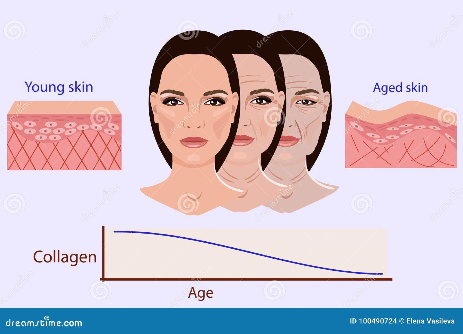 Dirigez le visage et deux types de la peau - âgée et de jeunes pour les illustrations médicales et cosmetological
