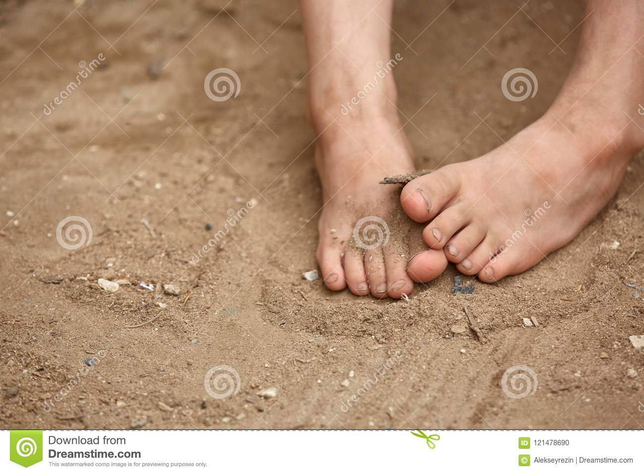 Ugly Feet Stock Photos, Pictures & Royalty-Free Images