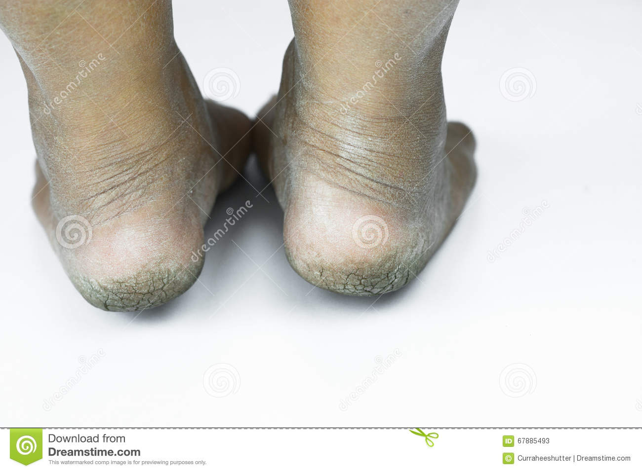 Dirty Foot Ored Heels Isolate On White Background Medical Or Feet Health Of The