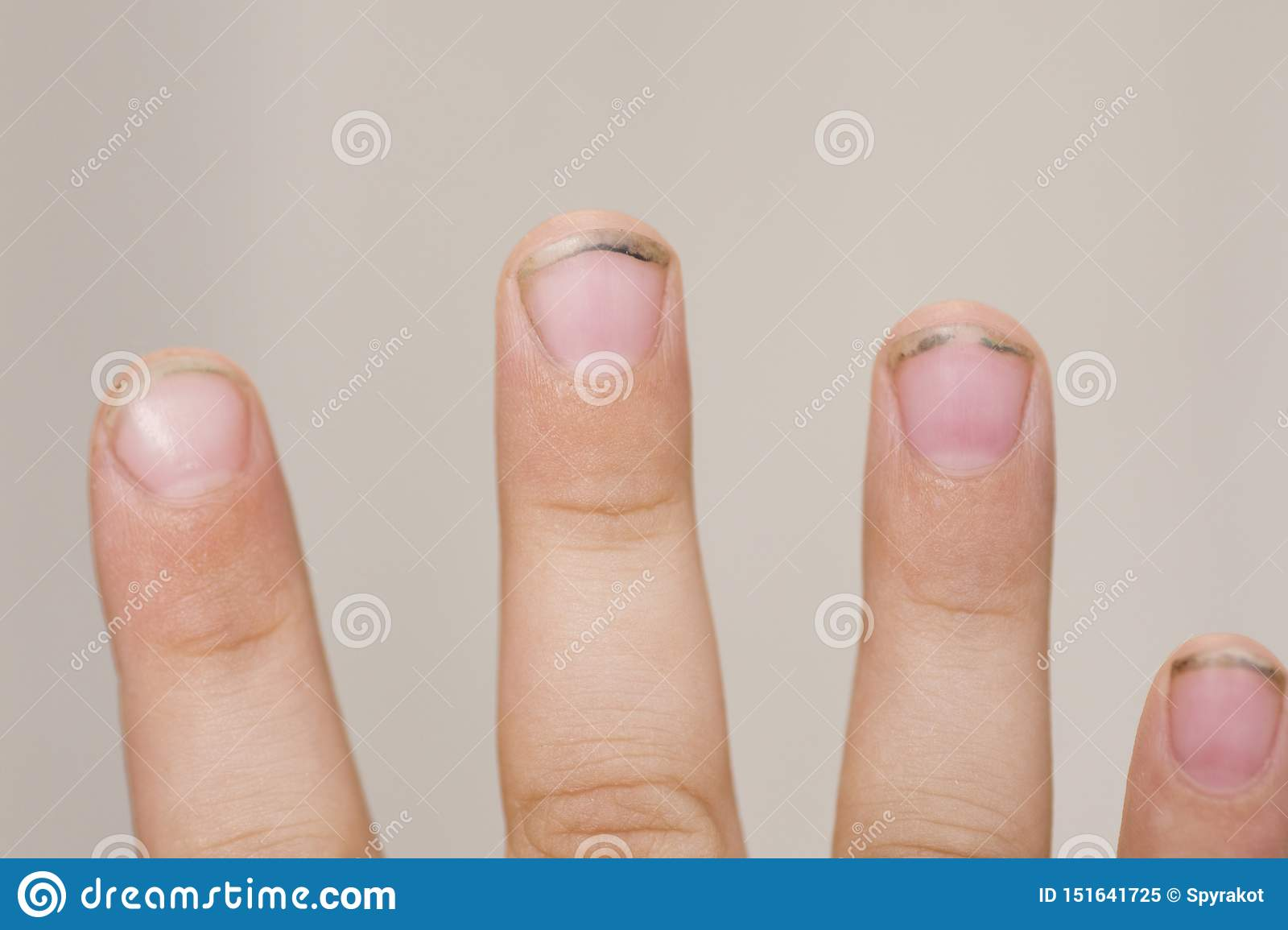 Dirty Long Nails Have Germs Make Sick Dirt Under The Nails