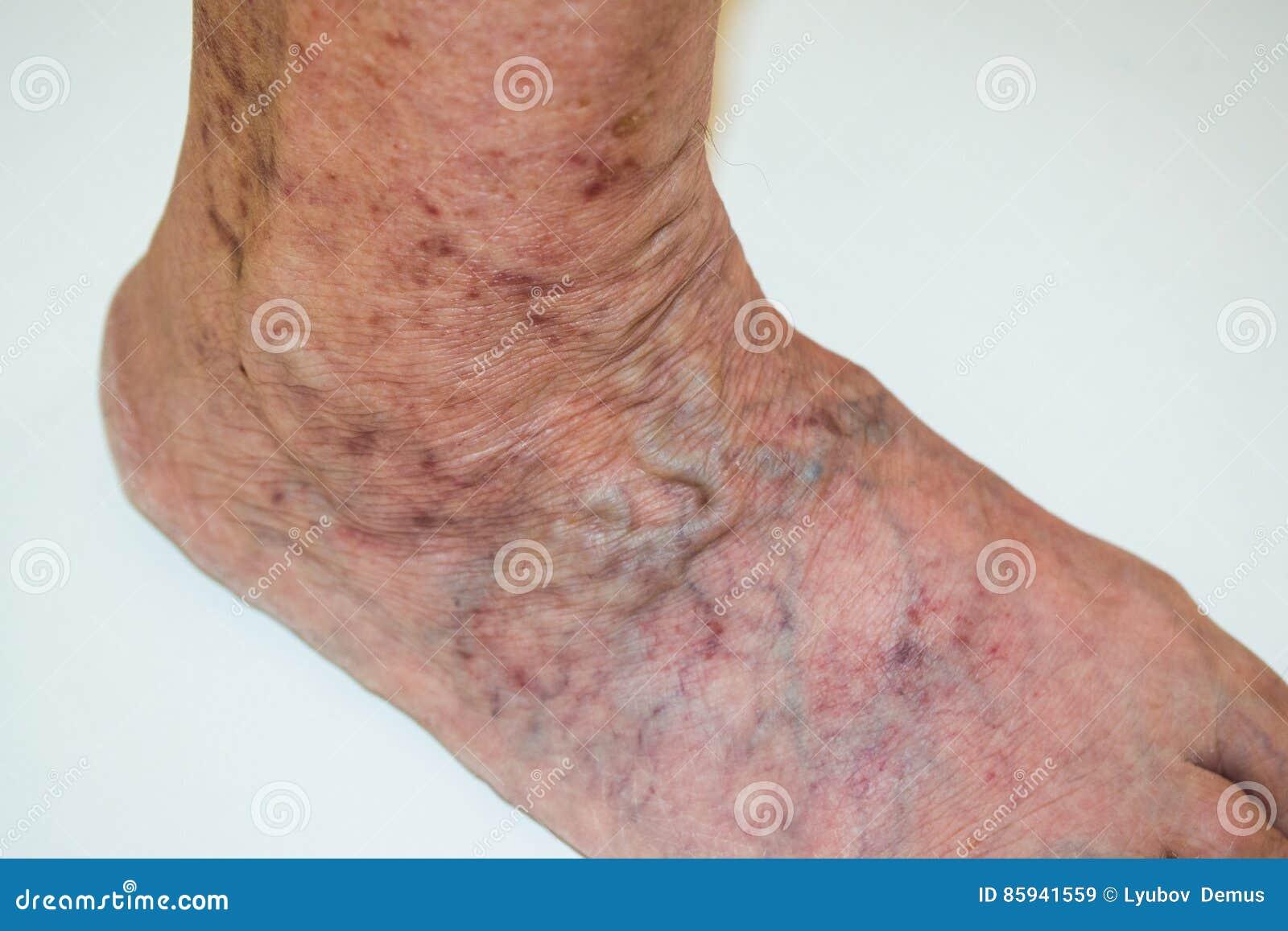 nici o durere varicoză prevenirea varicoză și tratament folcloric