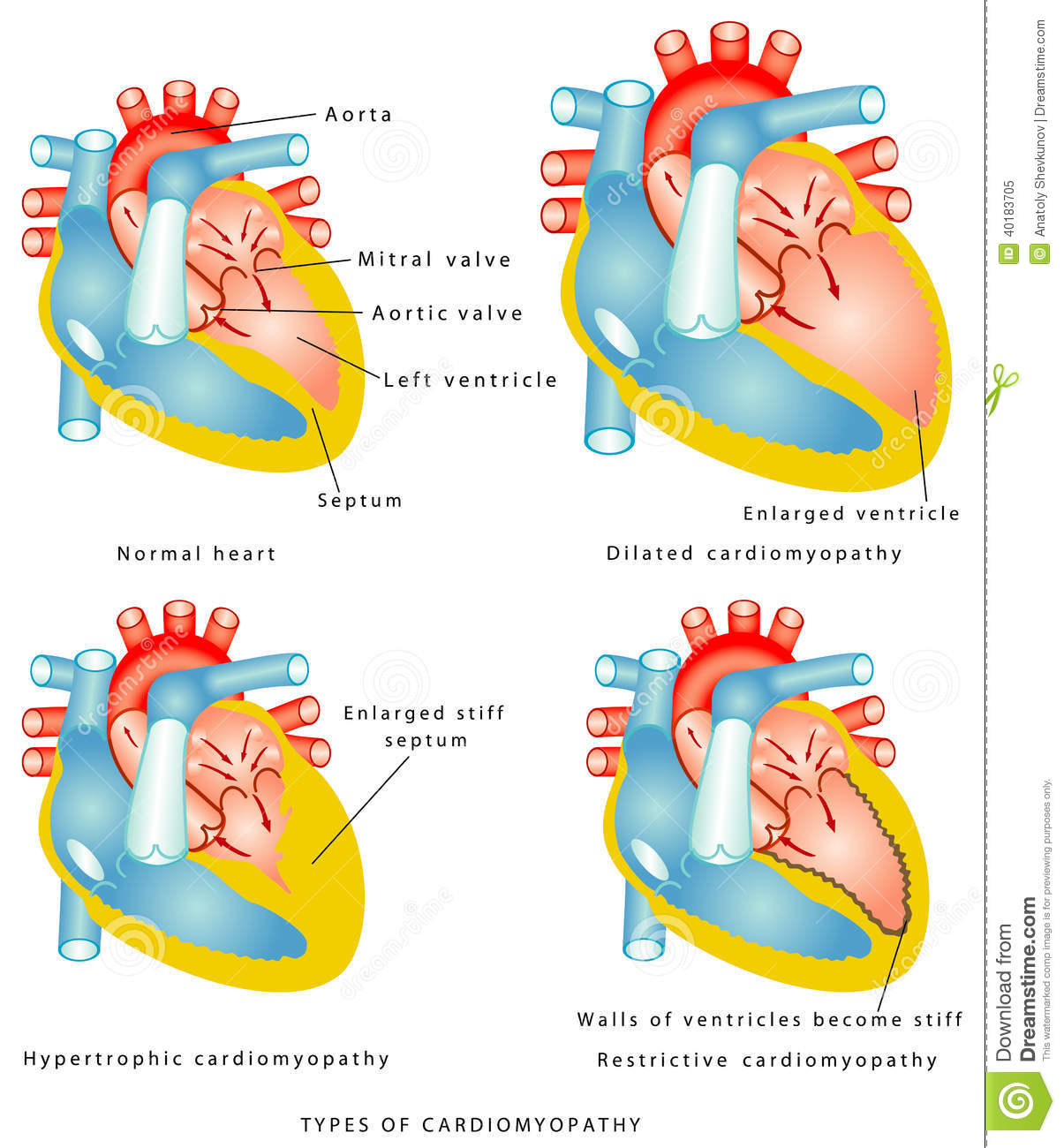 Diseases Of The Heart Muscle Stock Vector Image 40183705