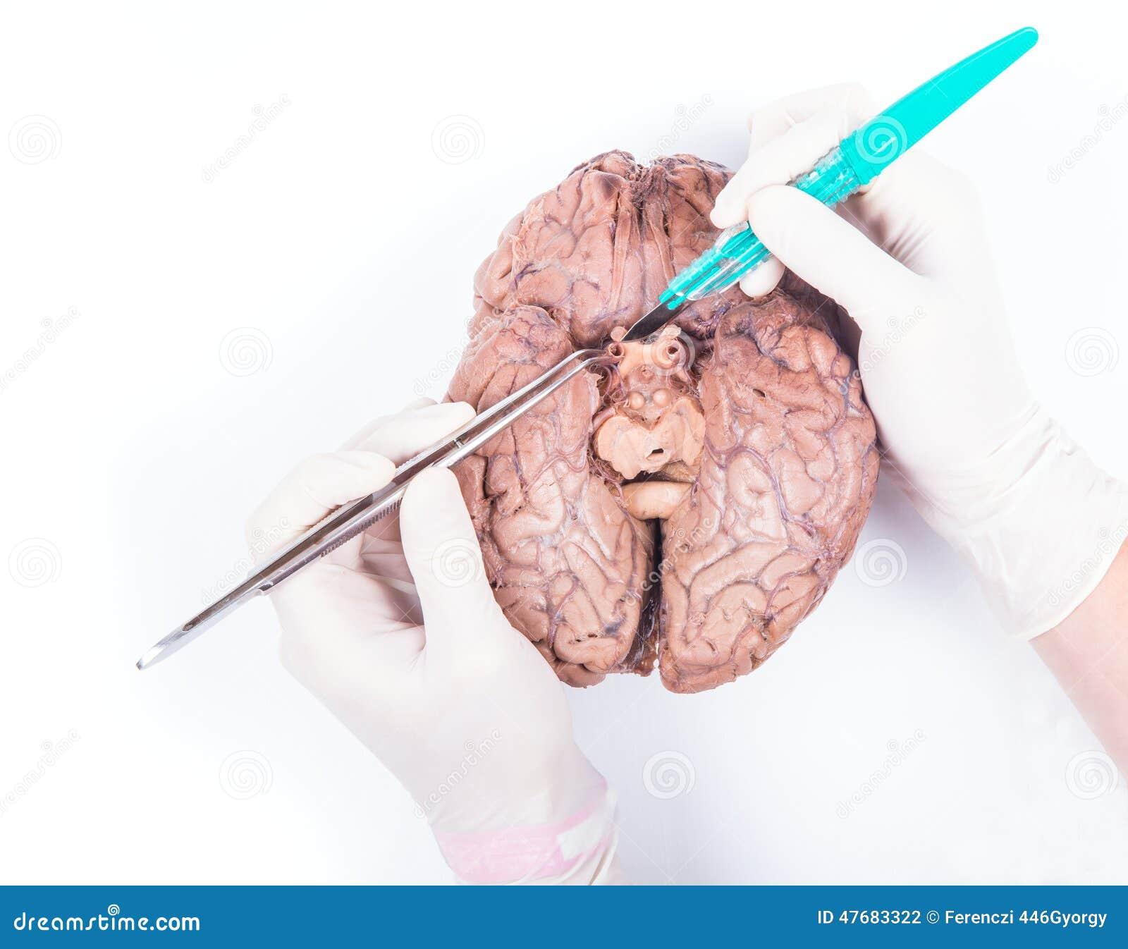 Disección Del Cerebro Humano Foto de archivo - Imagen de carrocería ...