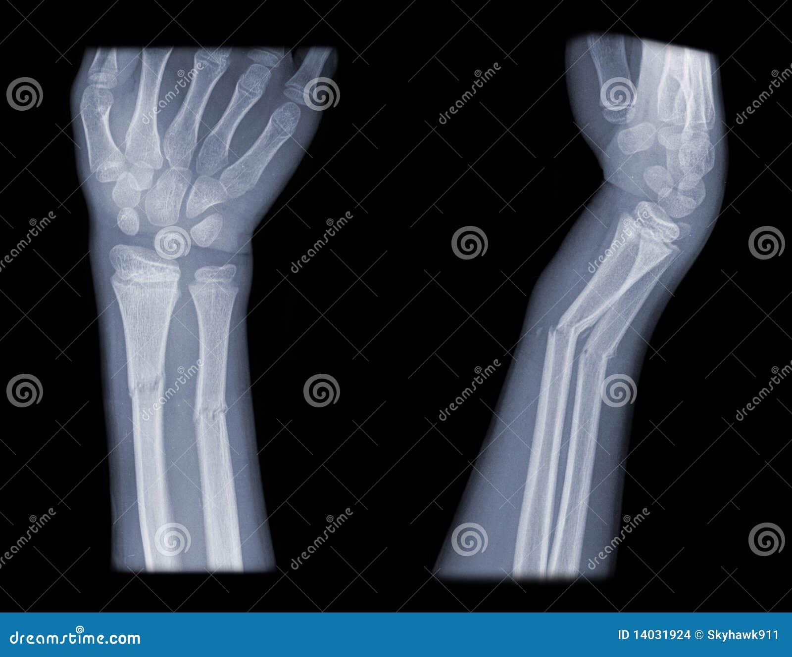 Distal arm fracture