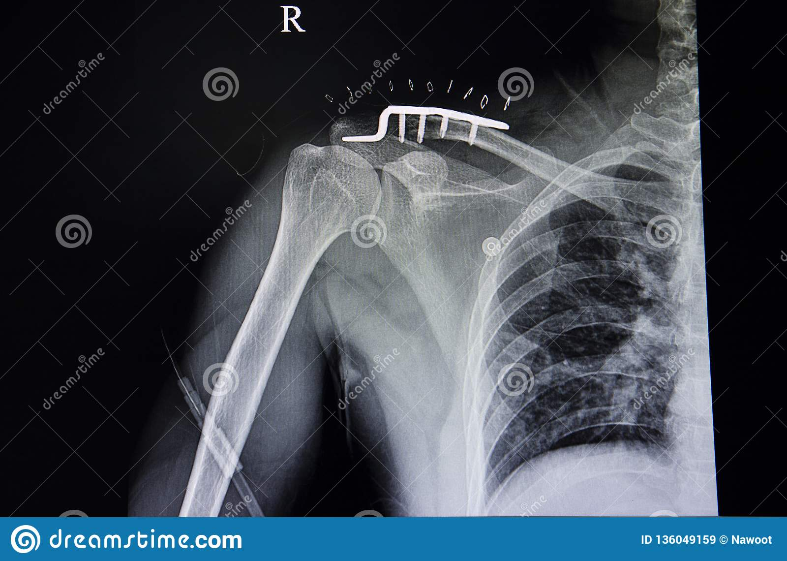 distal clavicle fracture and pulmonary tuberculosis