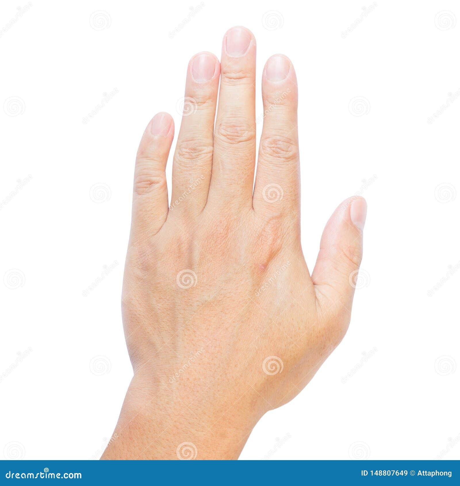 Dita di Clinodactyly isolate sulla quinta malattia isolata bianca di Dupuytren del dito clinodactyly e sulle mani disabili