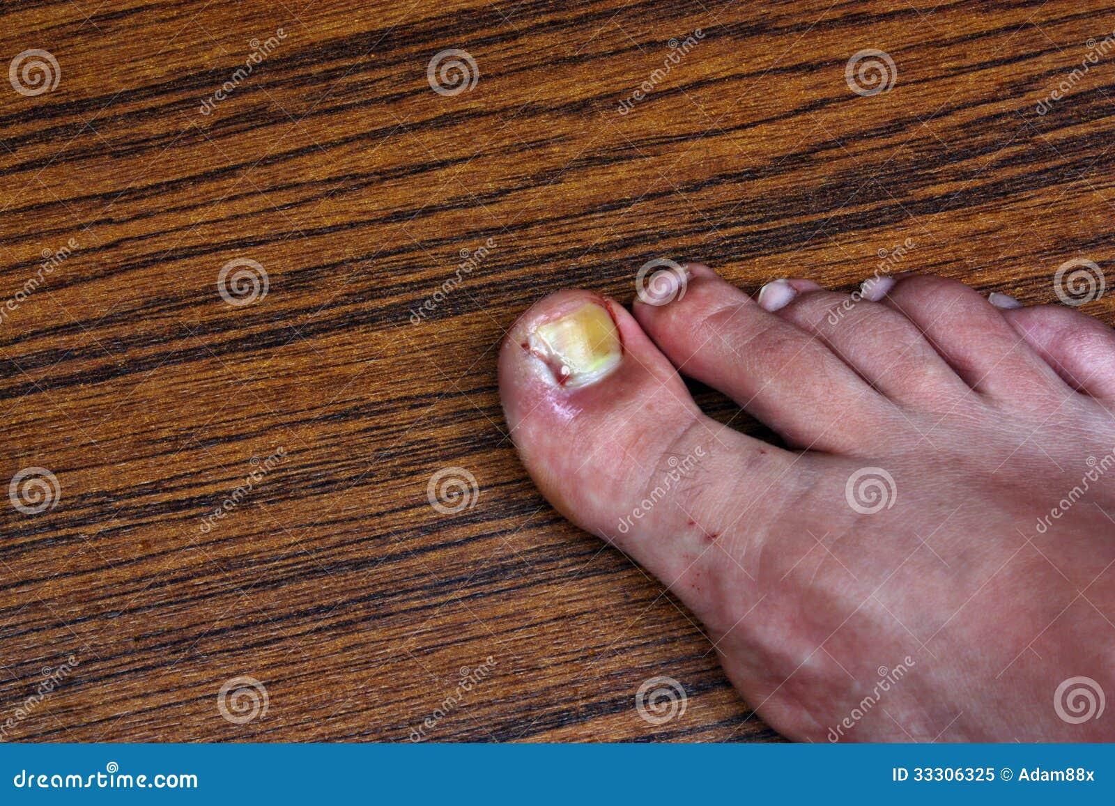Idrocortisone da un fungo di unghie
