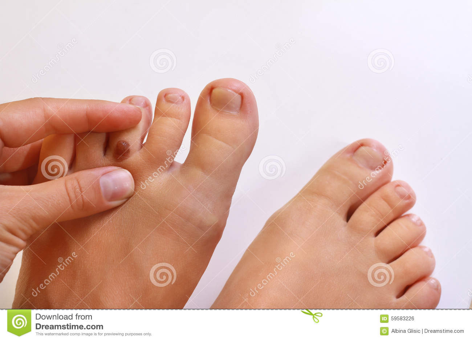 Что означают волосы на пальцах ног
