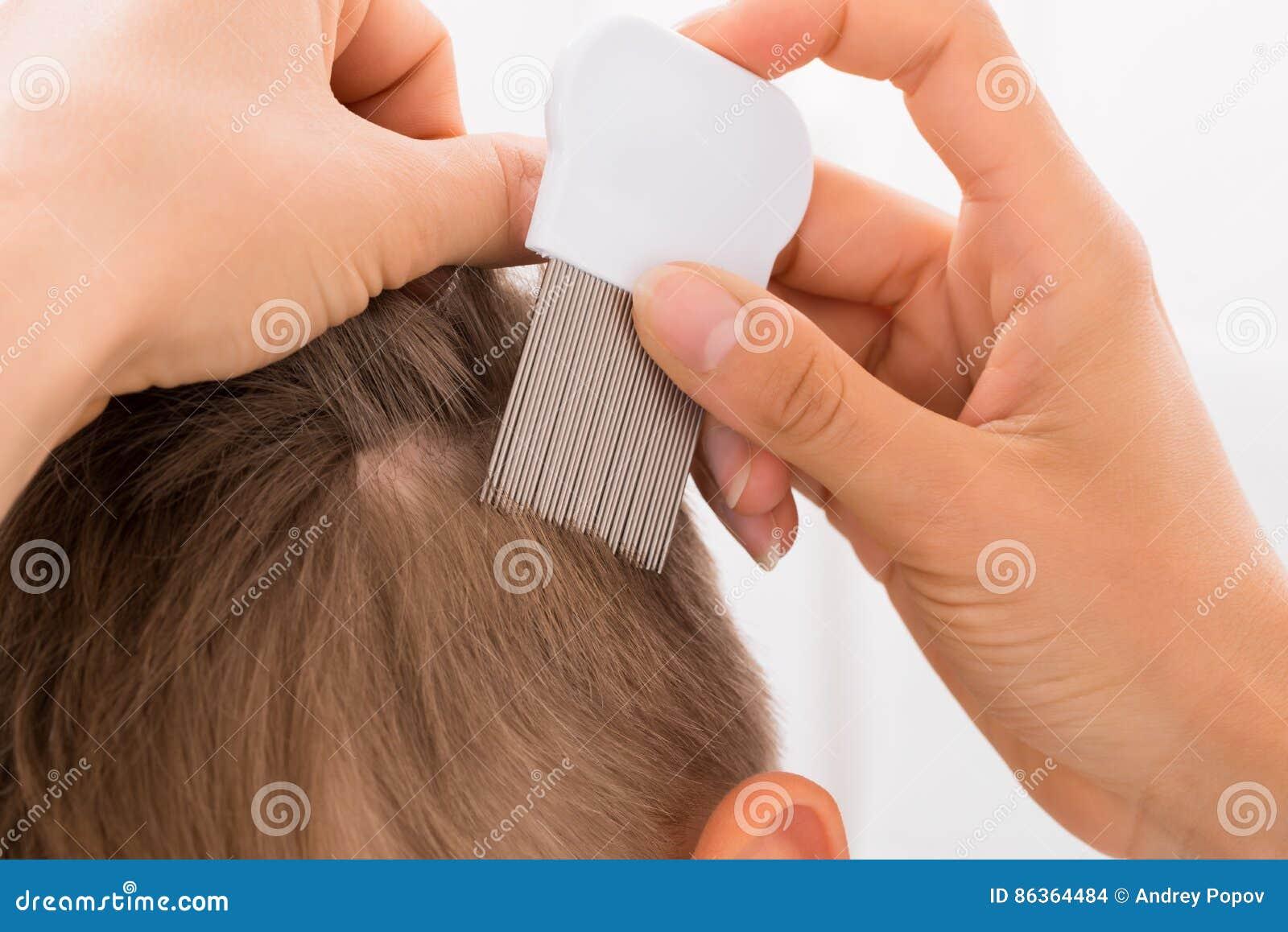 Doctor Doing Treatment On Boy`s Hair