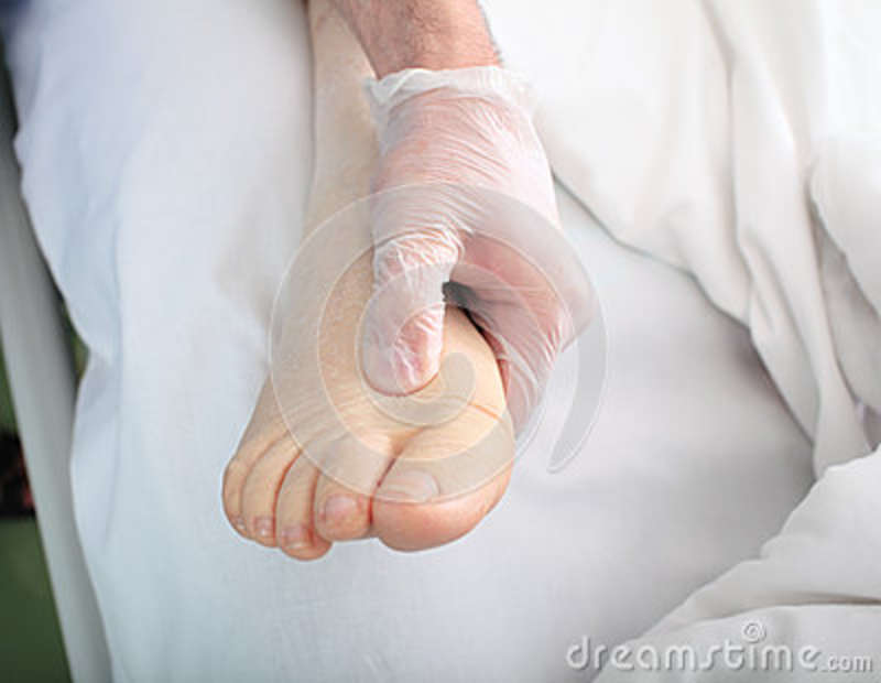 Doctor examines foot with edema