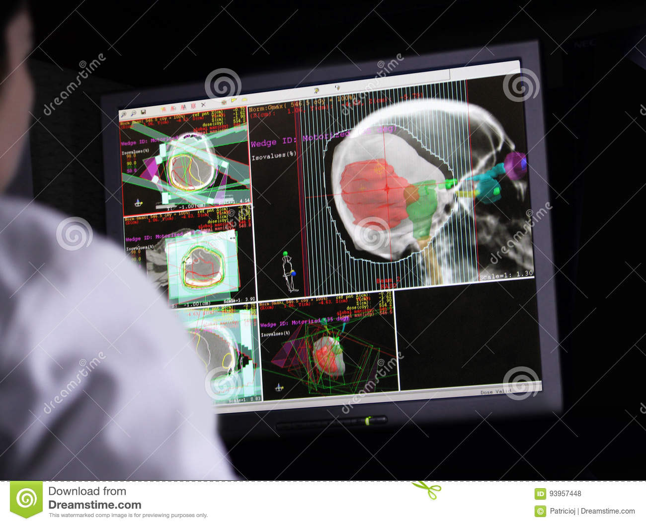 Doctor examining a brain scan on computer