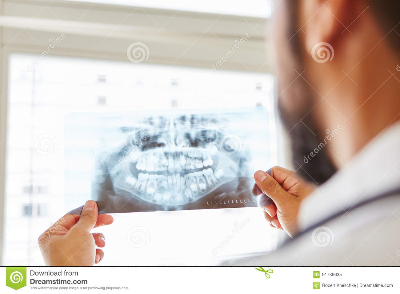 Doctor holding x-ray image from jaw