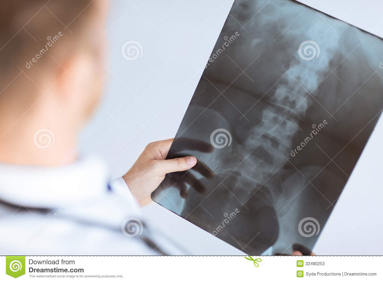 Close up of male doctor holding x-ray or roentgen image Xray Hand Holding