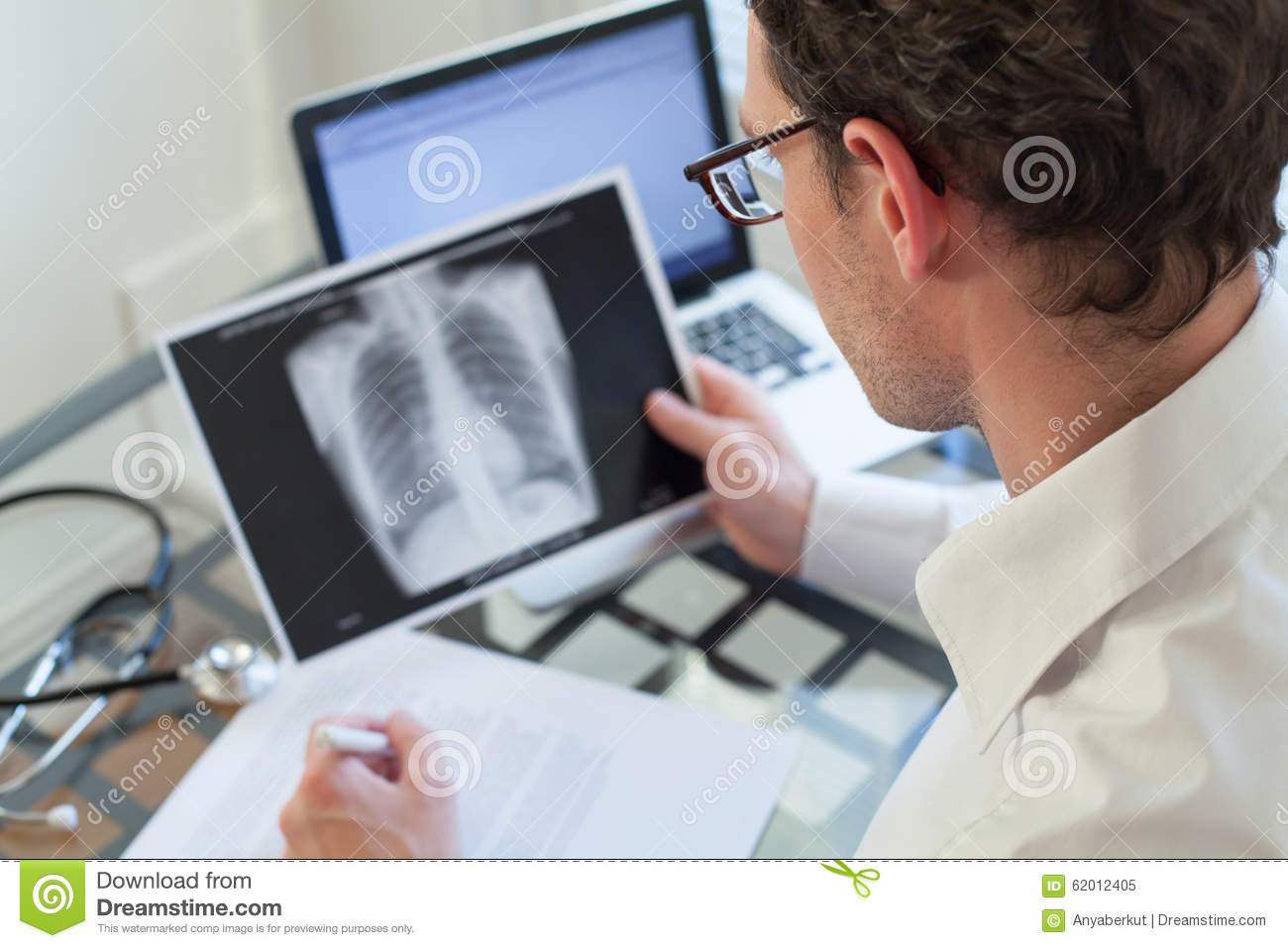 Doctor looking at x-ray of lungs, cancer diagnosis