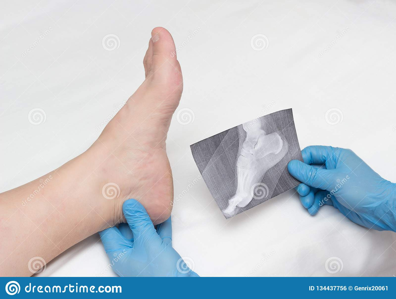 A doctor in medical gloves holds an x-ray of the foot and examines a sore leg with a heel spur on a woman, close-up