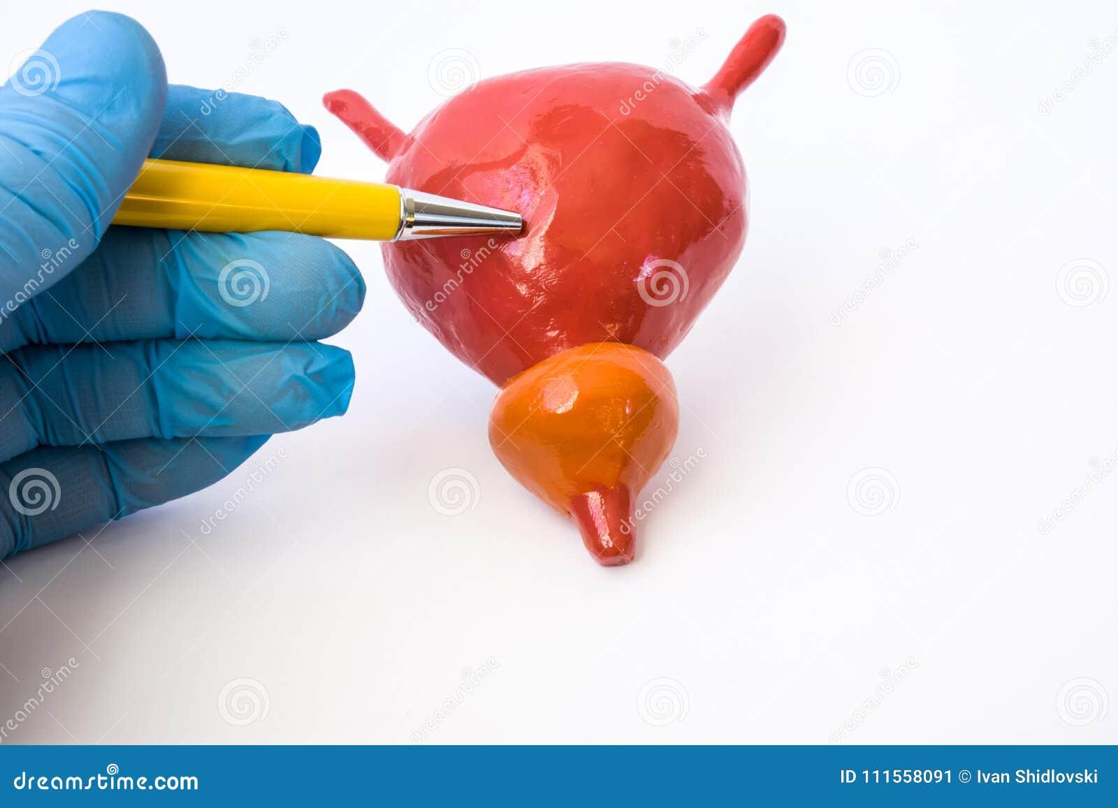 próstata agrandada de la vejiga agrandada