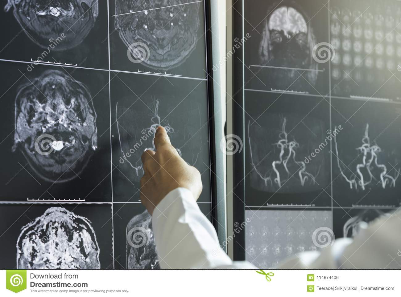 Doctor Pointing To Brain Anatomy On Mri Image Stock Photo Image Of
