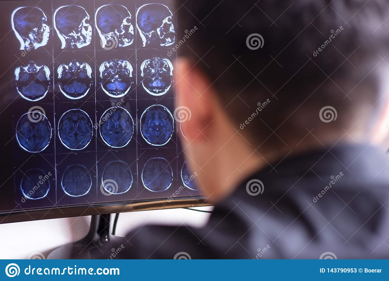 Doctor radiologist in hospital looking at mri x-ray scan of brain, head and skull ct scanning image on computer screen