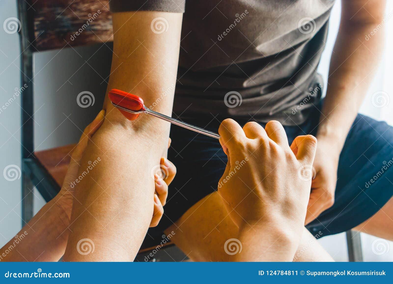 Doctor Testing Biceps Tendon Reflex Stock Image - Image of