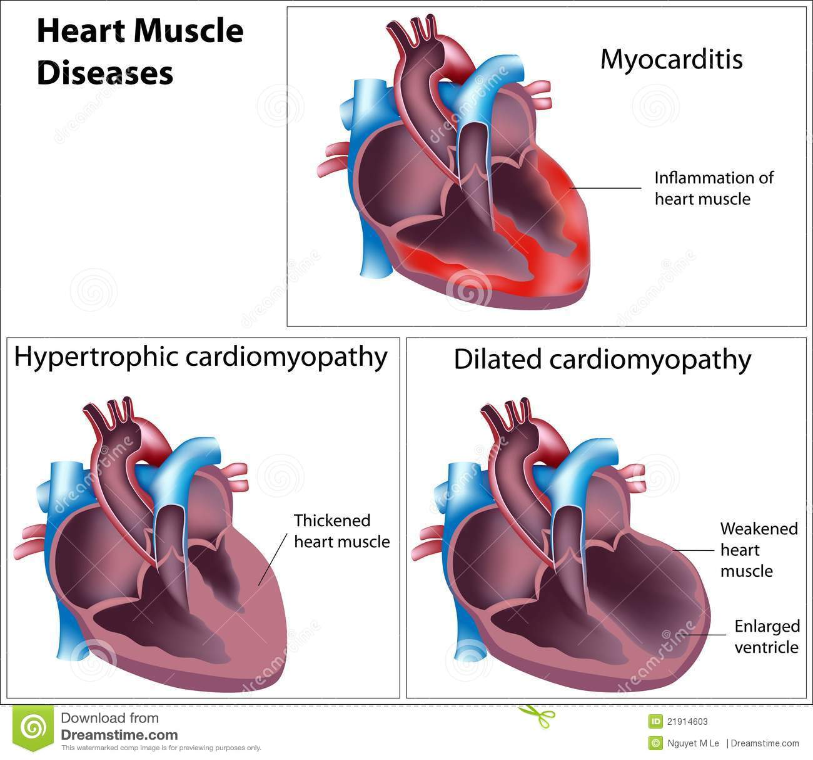 Doenças do músculo de coração