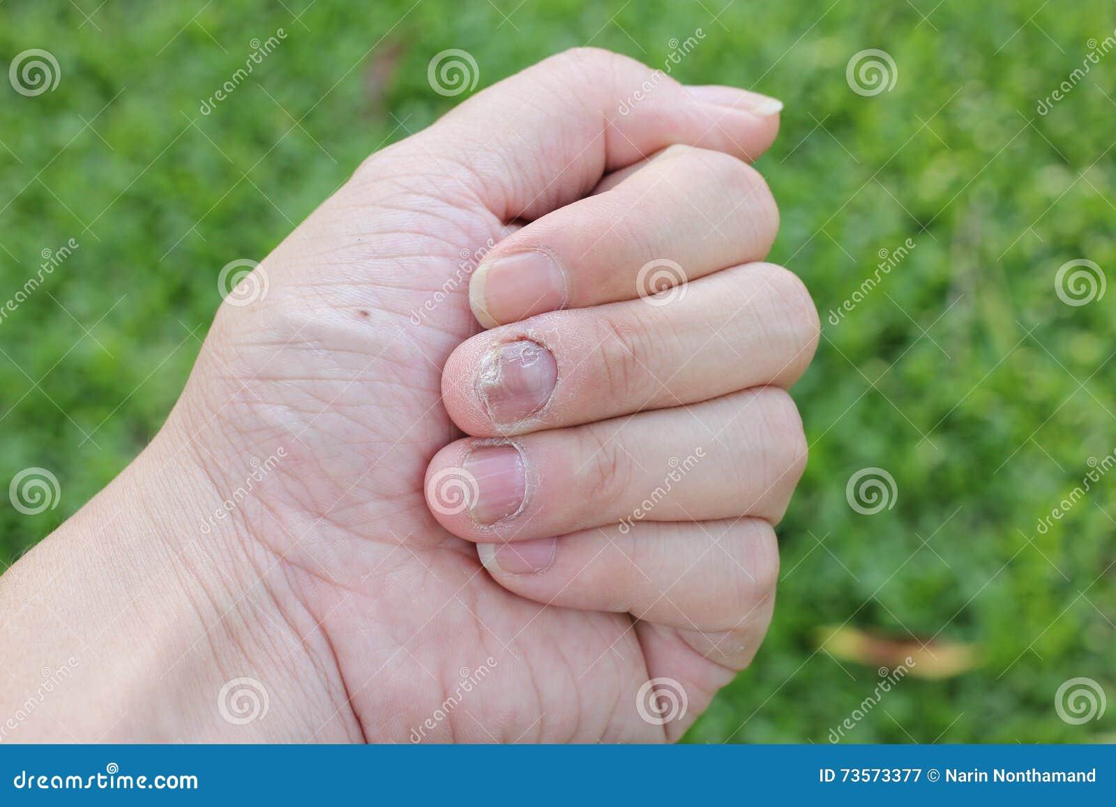 Doigt avec l 39 onychomycosis un champignon d 39 ongle de pied foyer mou image stock image 73573377 - Coupe des ongles de pieds ...