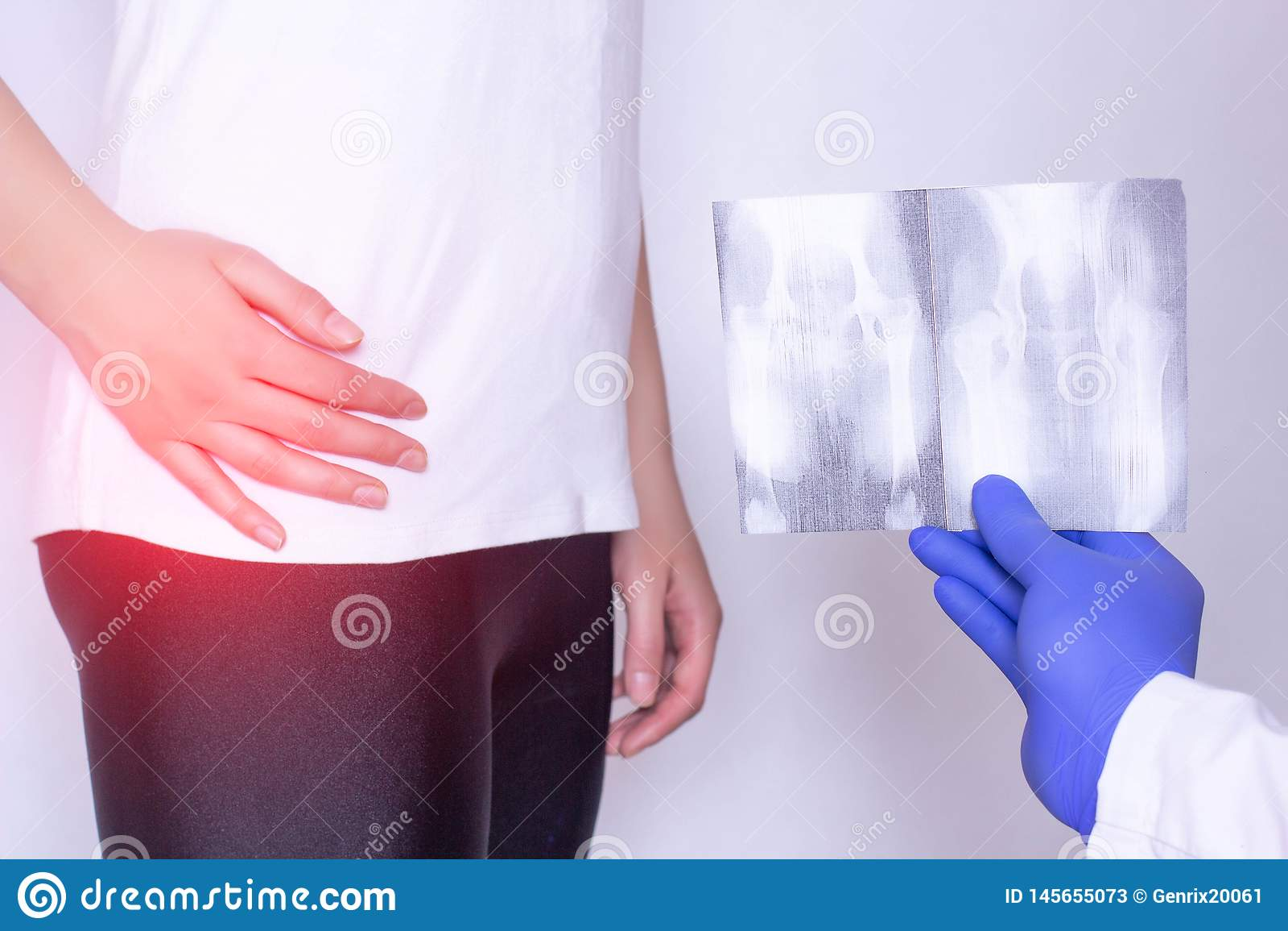 Doktorn rymmer röntgenstrålebilden på bakgrunden av en flicka med en öm höftled och en intervertebral bråck, fibromyalgiaen, närb