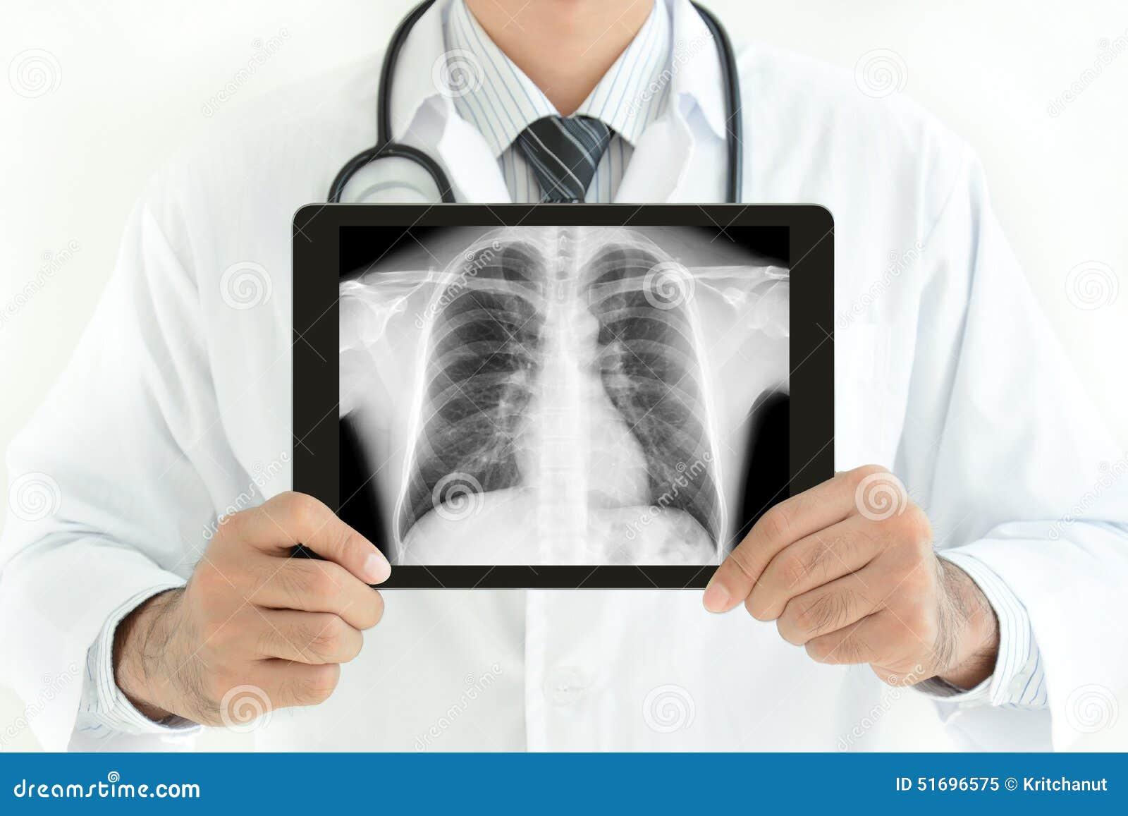 Doktorski mienie pastylki komputer osobisty z normalnym męskiej klatki piersiowej promieniowania rentgenowskiego wizerunkiem