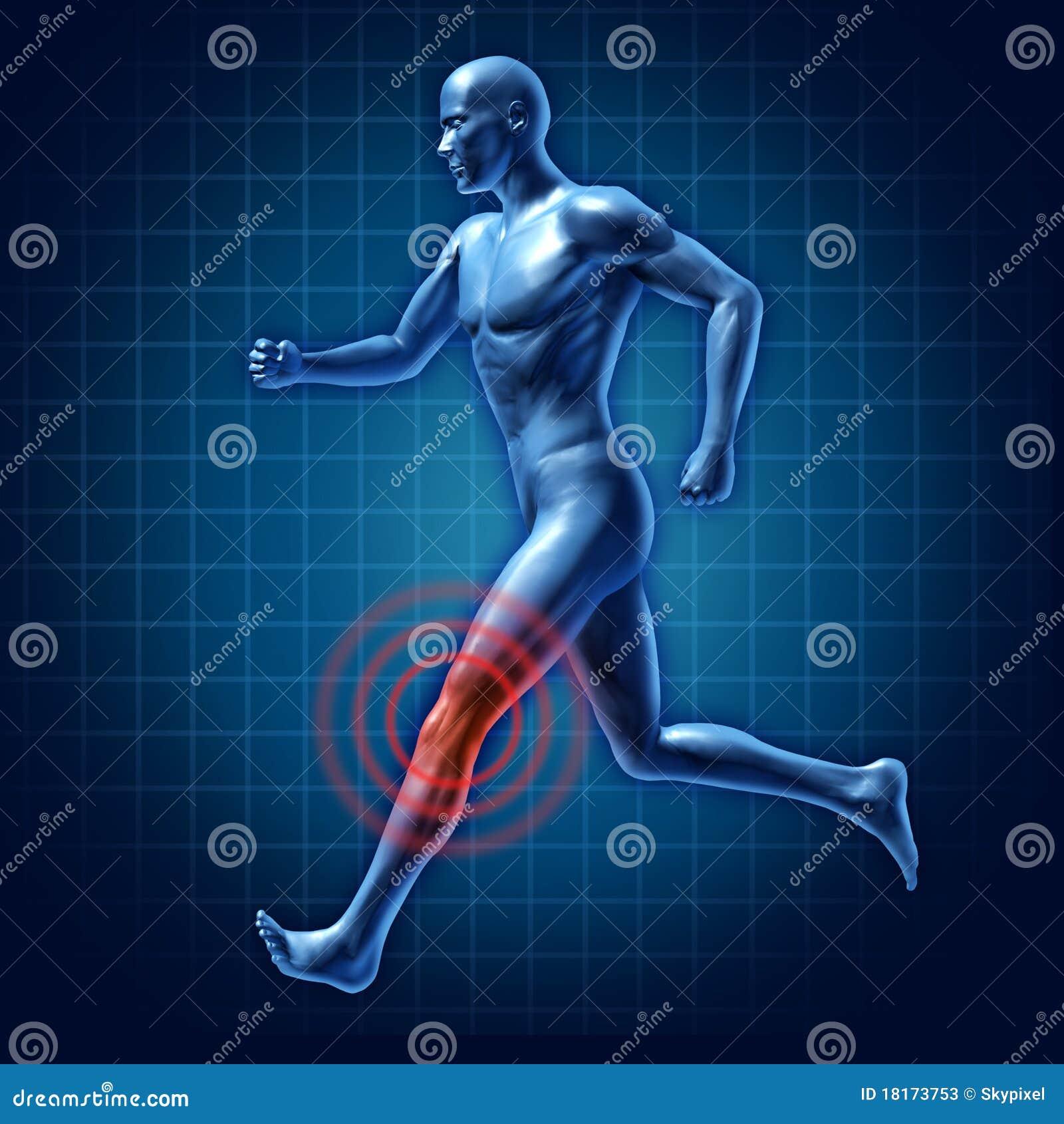 Dolor común de la rodilla del corredor humano de la terapia médico