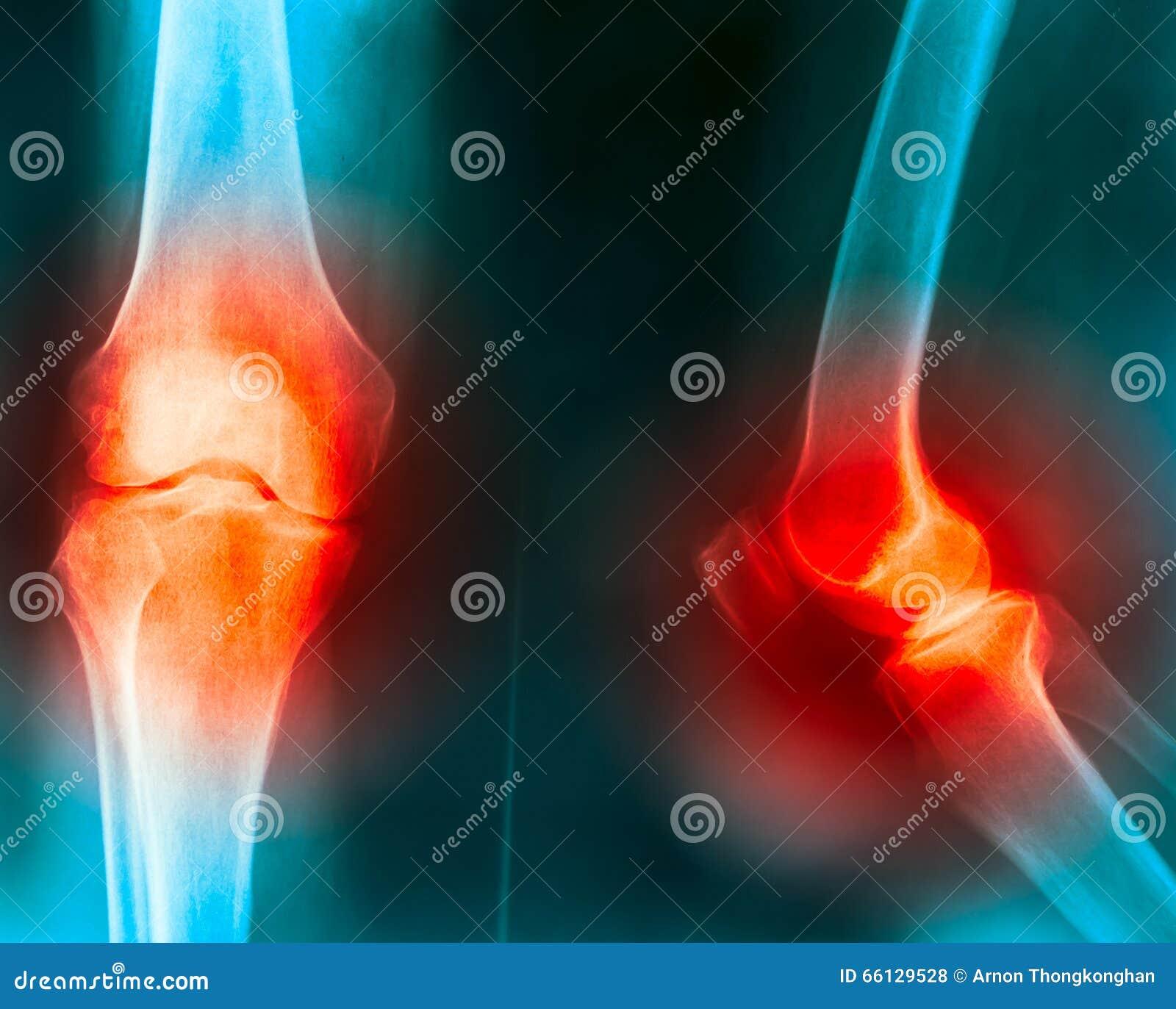 Dolor común de rodilla