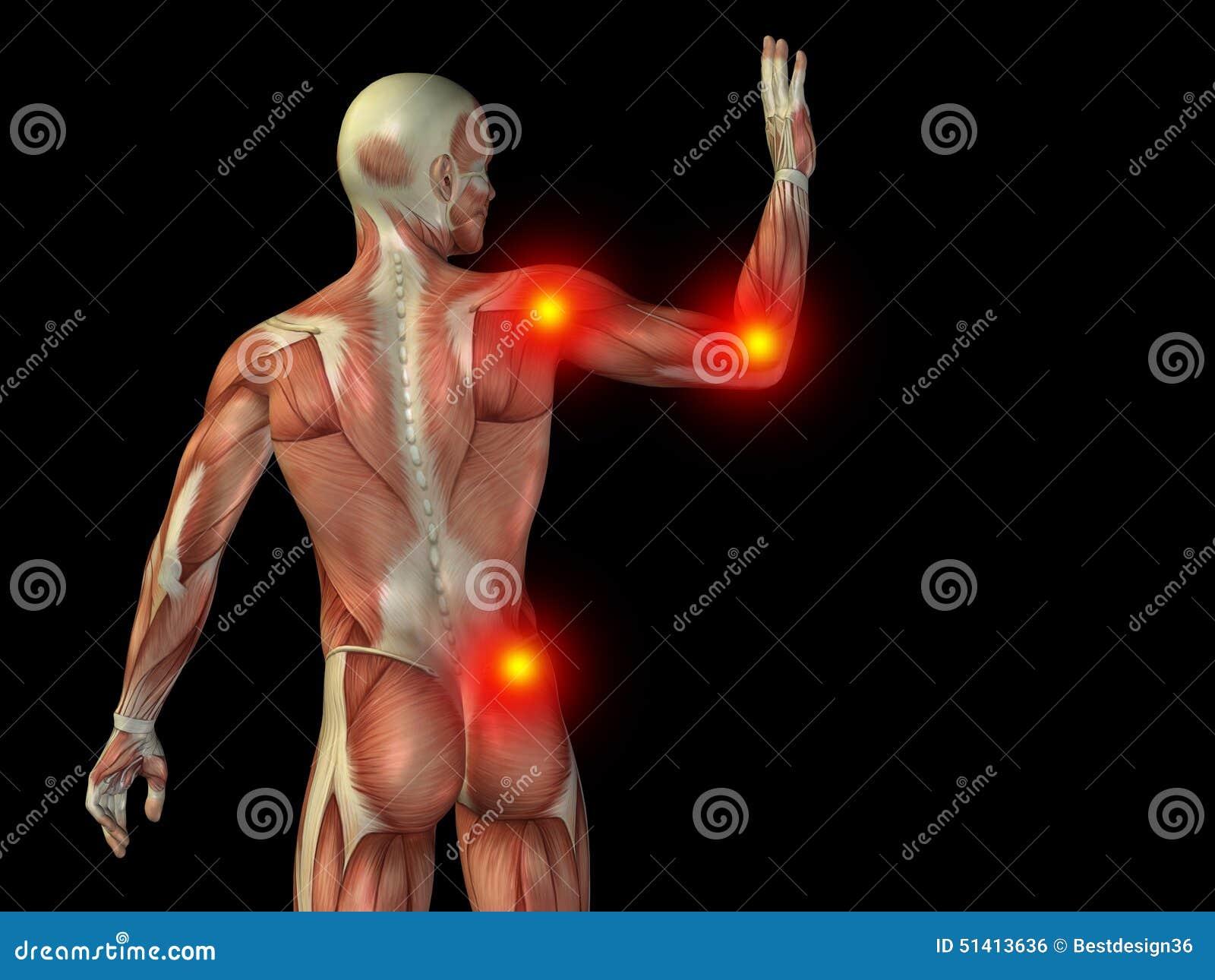 Dolor Conceptual De La Anatomía Del Cuerpo Humano En Negro Foto de ...