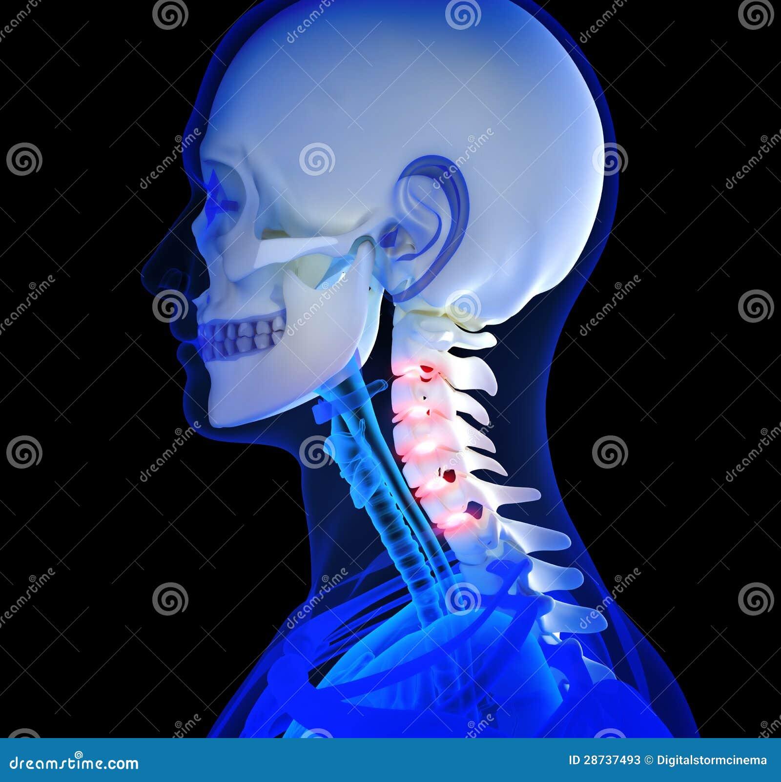 Dolor de cuello humano stock de ilustración. Ilustración de pista ...