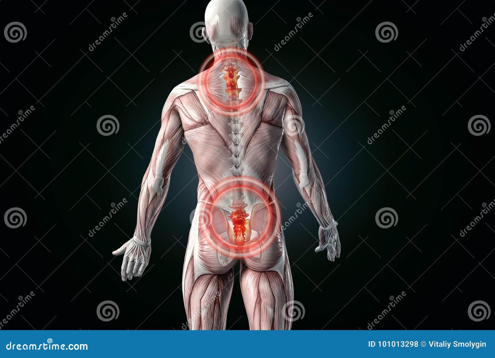 Dolor De Espalda Anatómico De La Visión Dolor De Un Espalda Más ...