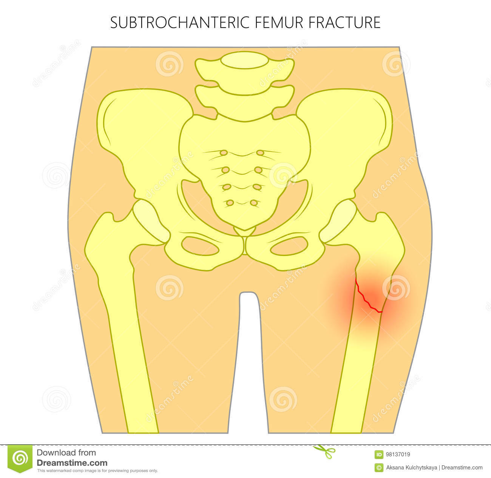 dolor en femur derecho