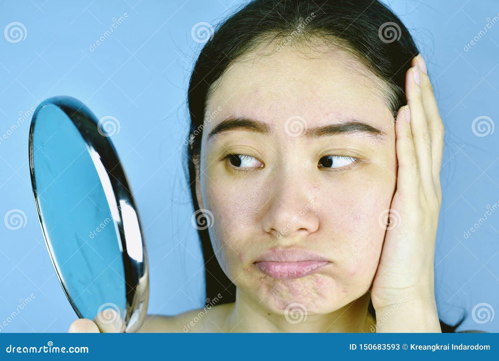 Donna asiatica che esamina il suo problema facciale nello specchio, sensibilità femminile per infastidire circa la sua manifestaz