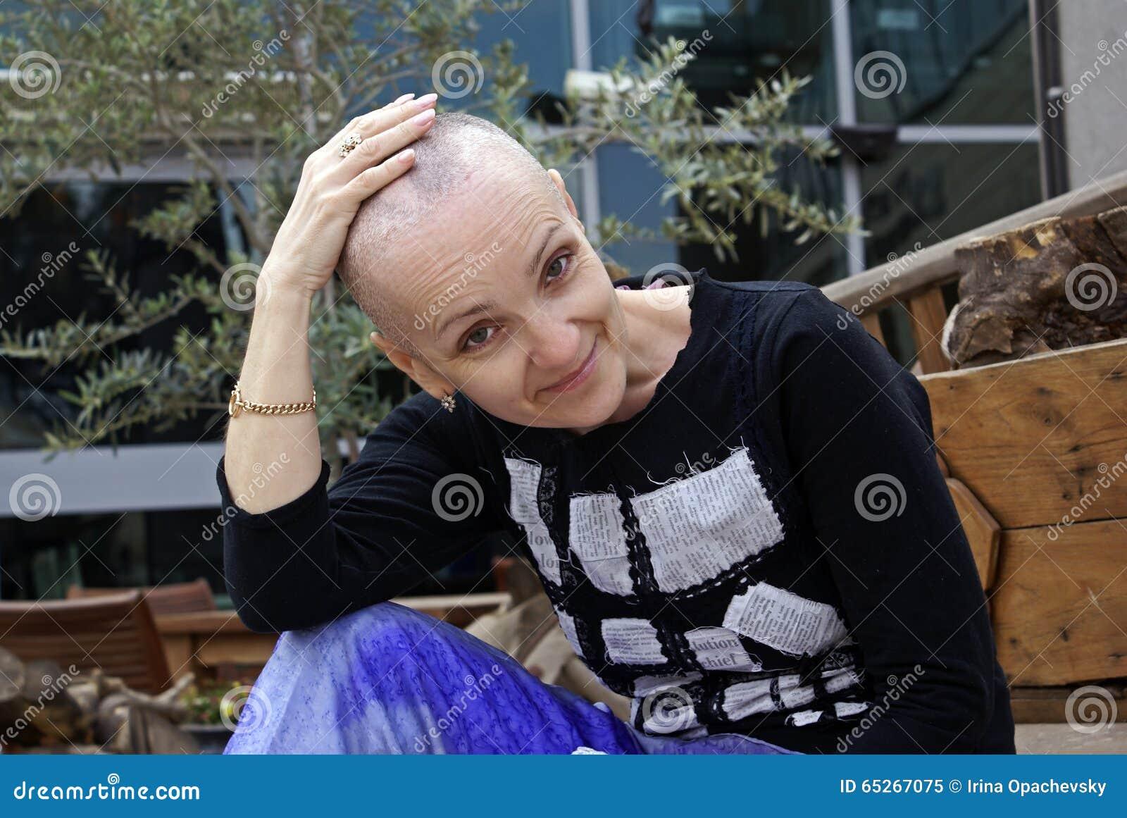 Donna Durante La Chemioterapia Immagine Stock - Immagine ...
