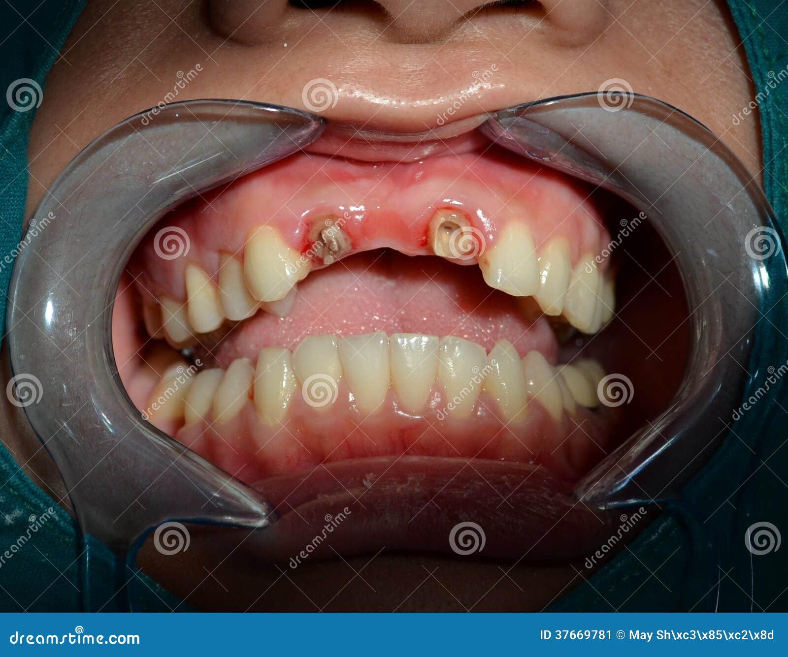 Dopo rimuova tutto il ponte ceramico dei denti superiori anteriori