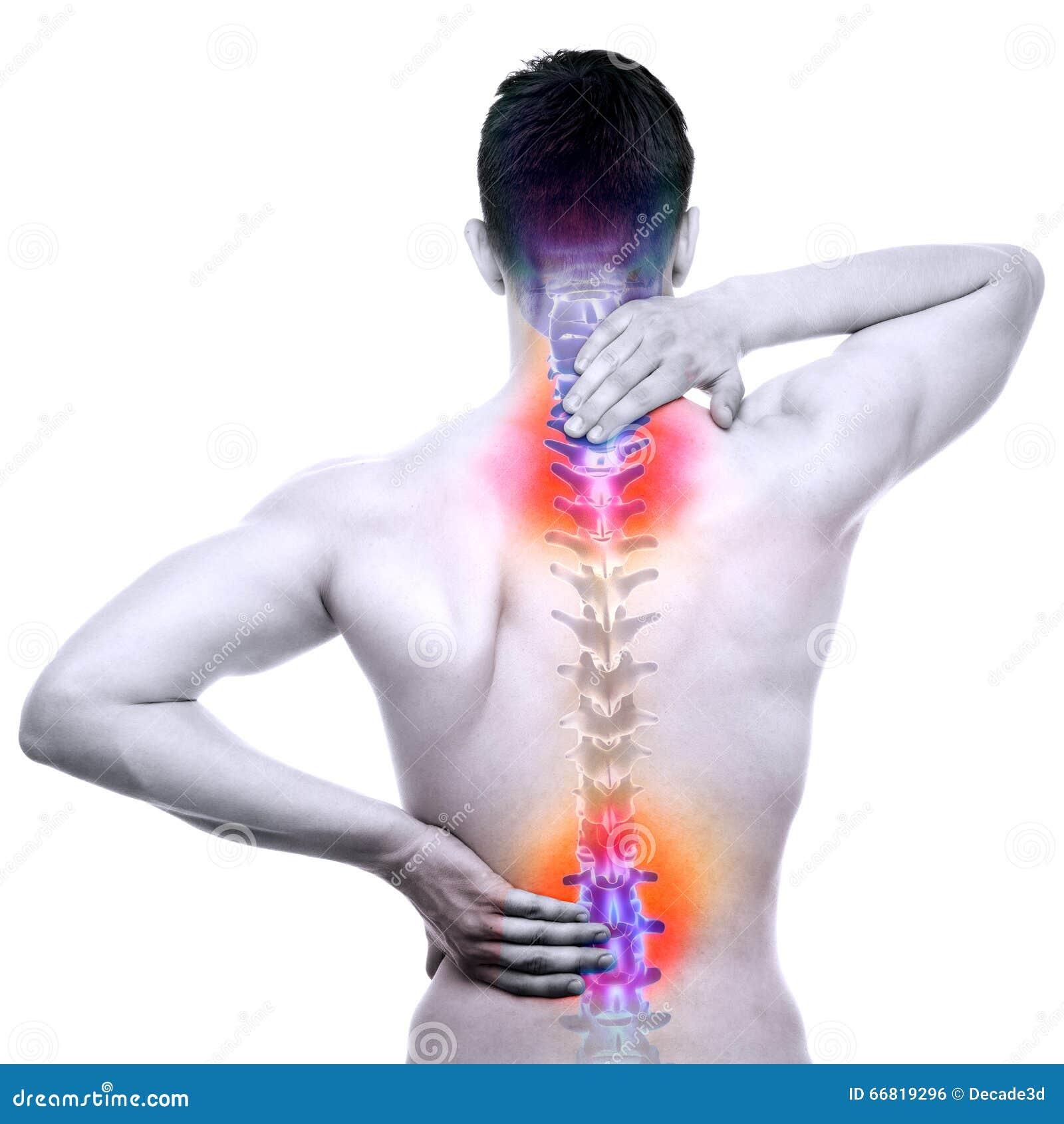 Dor da ESPINHA - espinha dorsal ferido do homem isolada no branco - anatomia REAL