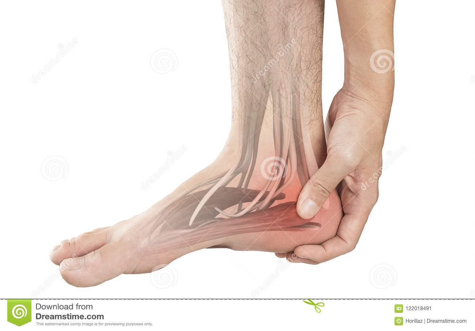 Dor de músculo do salto