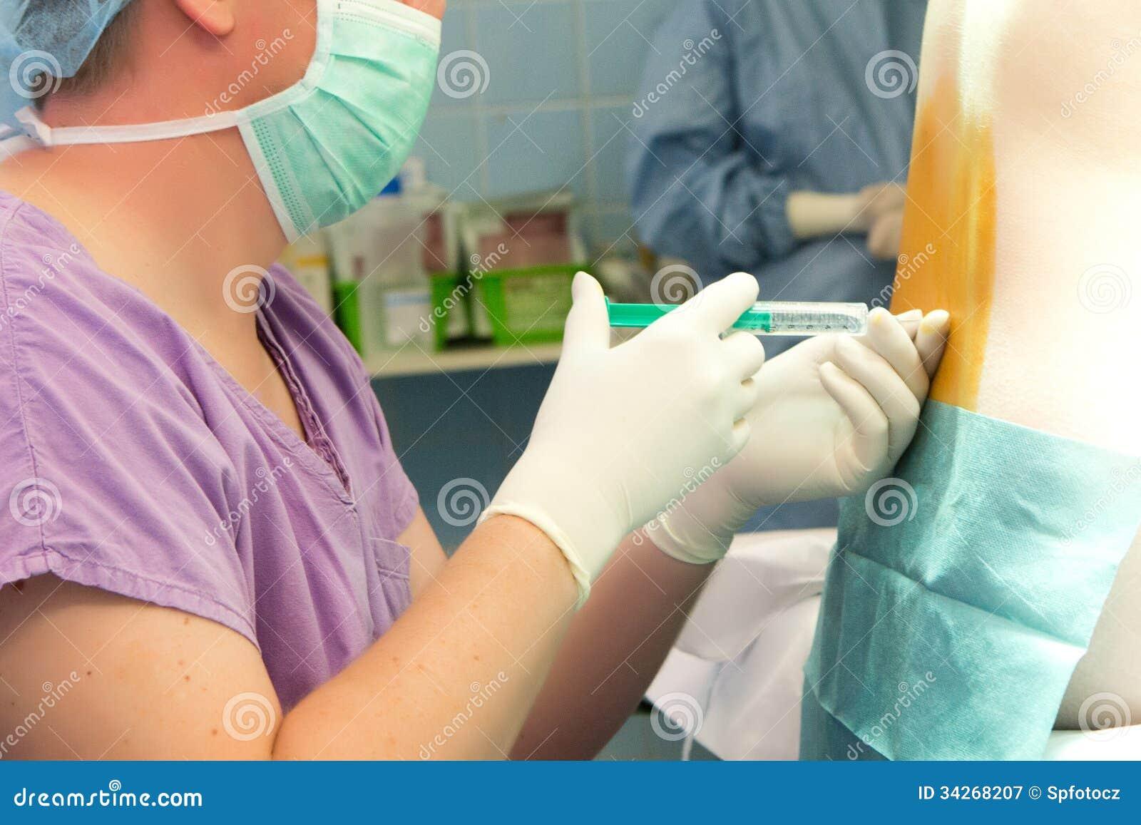 Dordzeniowa anestezja