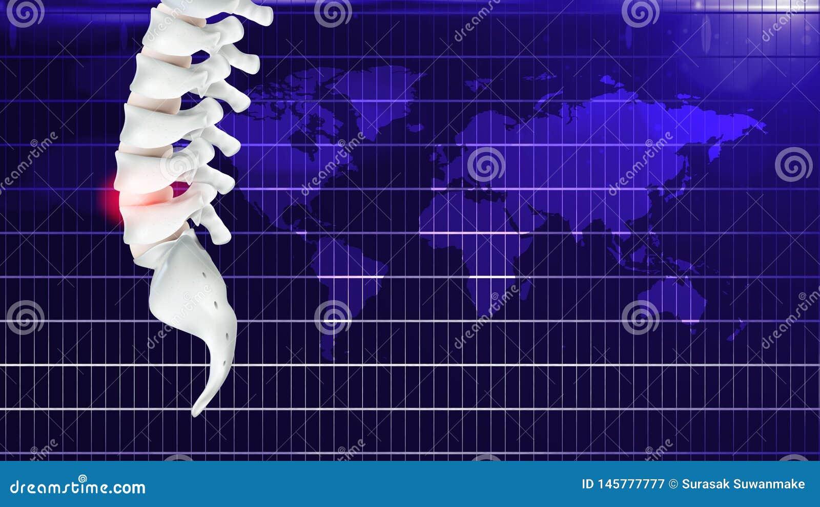 Douleur dans le syndrome d os ou de bureau, ou causé par le travail prolongé