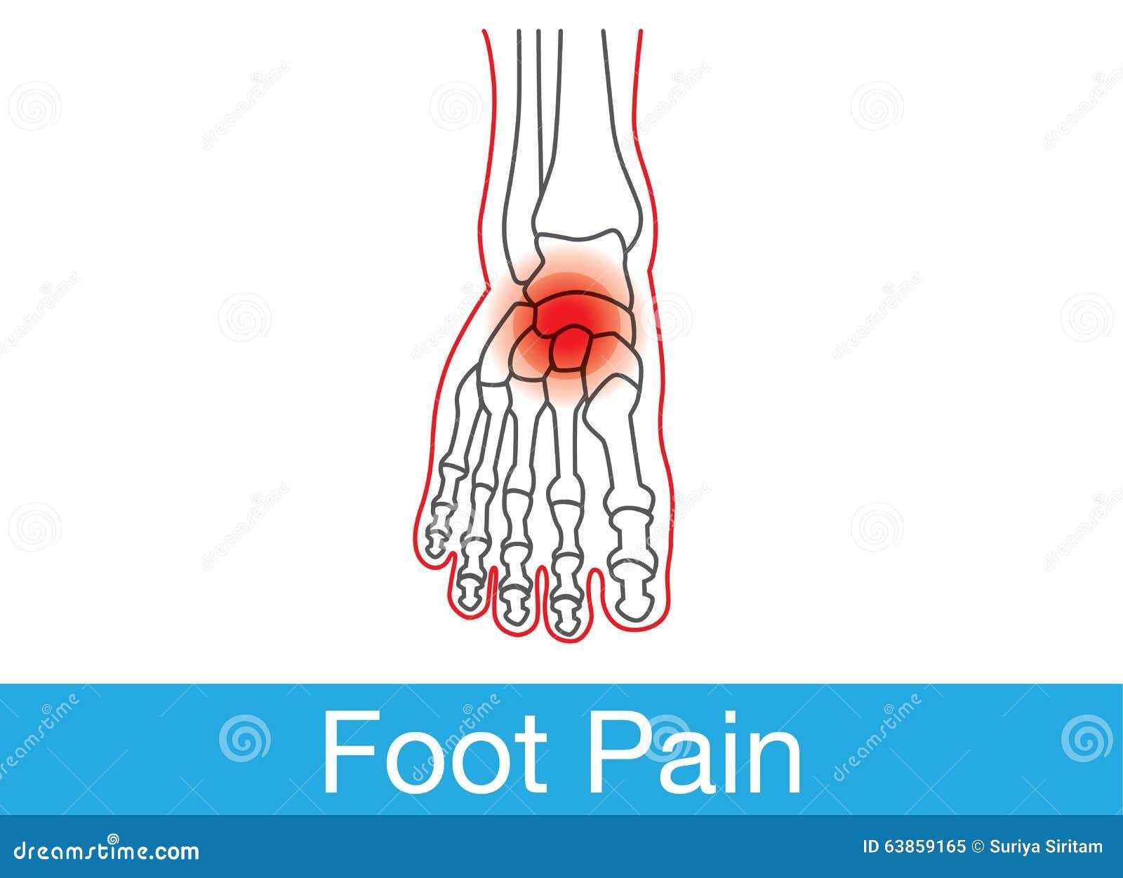 Douleur de pied illustration de vecteur image 63859165 for Douleur interieur pied