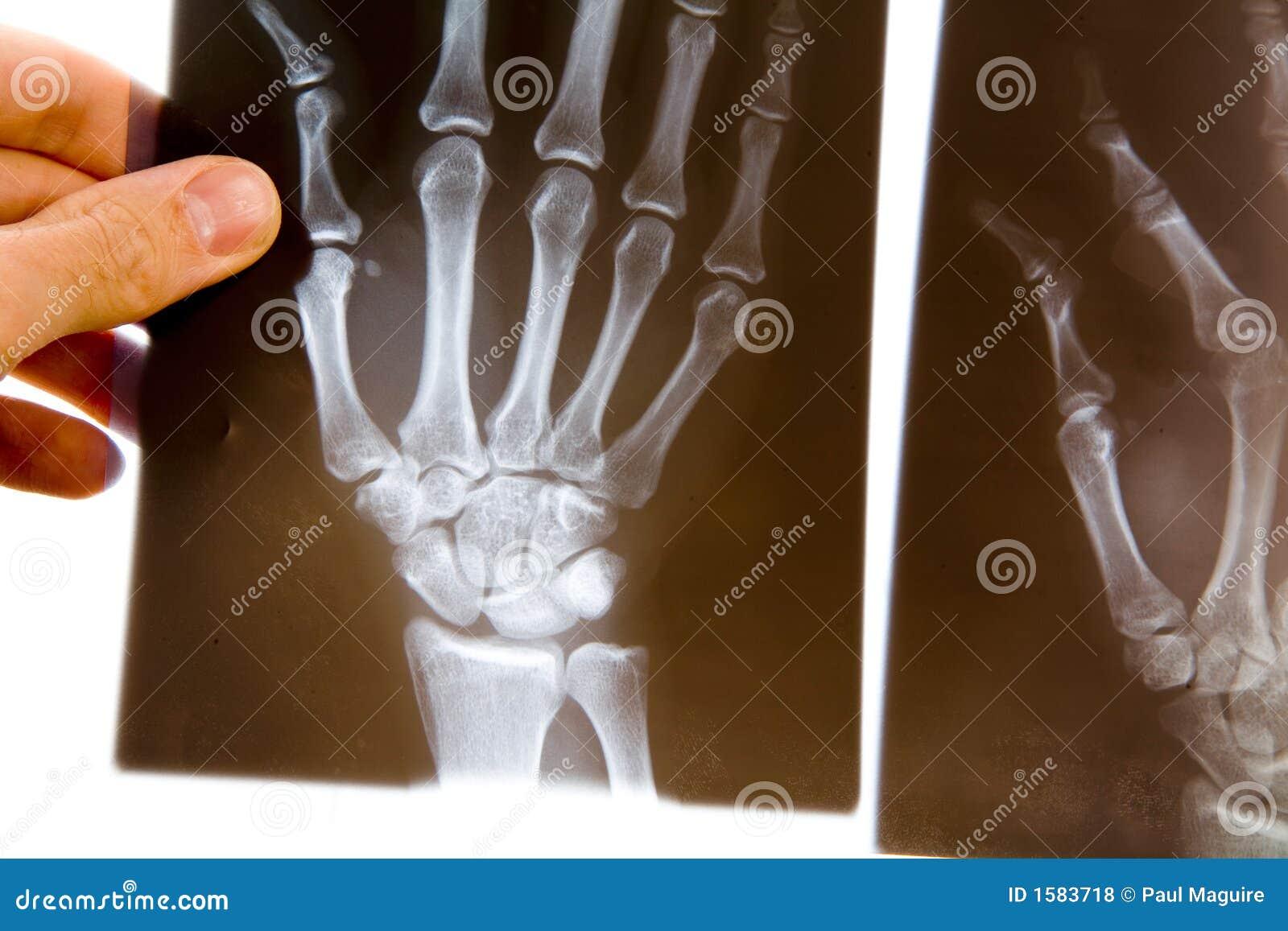 Doutor com raio X da mão