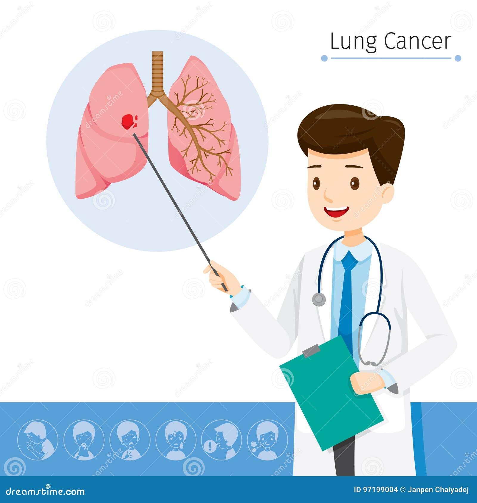 Doutor Describes About Cause a Lung Cancer