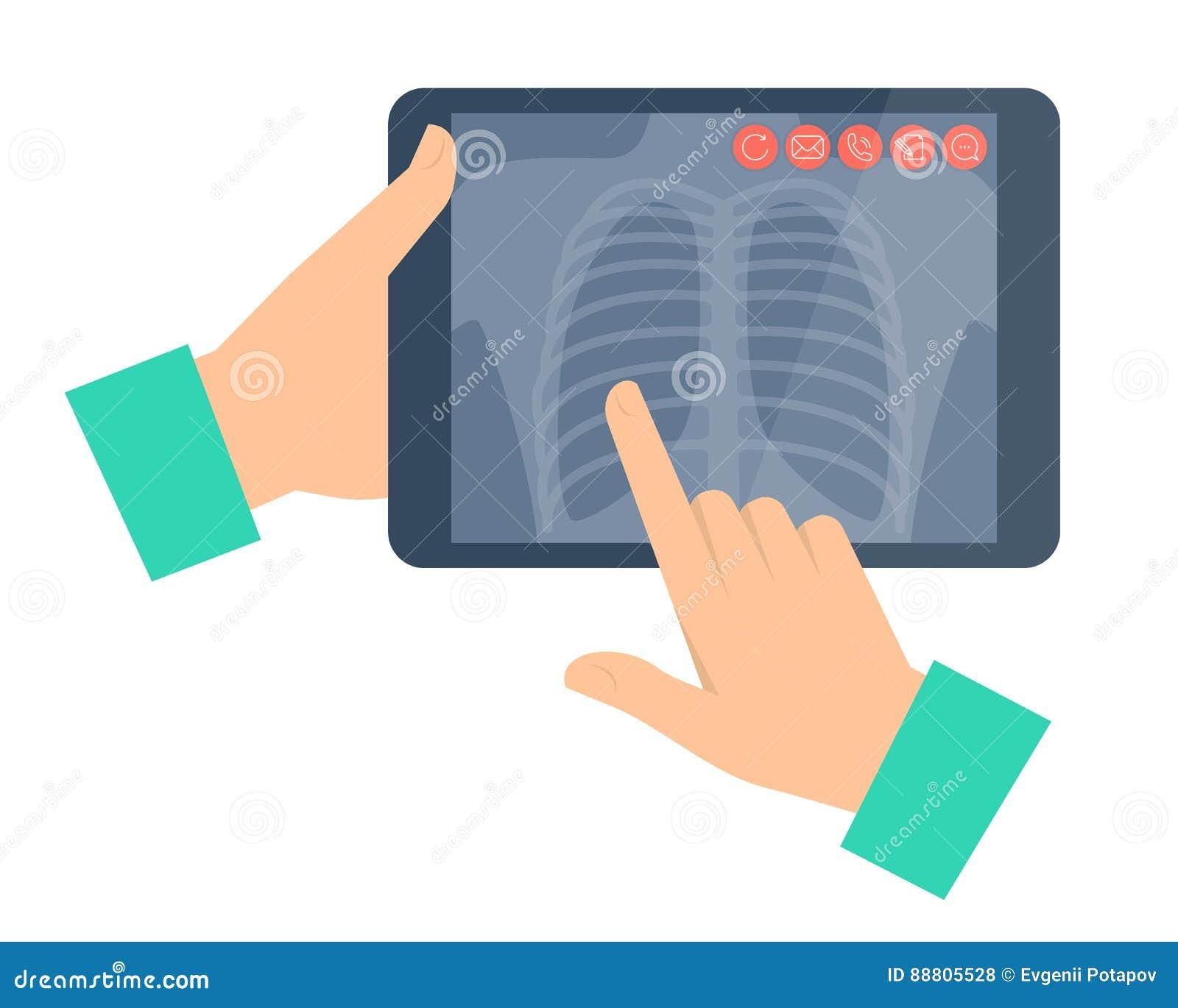 Doutor que guarda um tablet pc com radiografia do pulmão Telemedi