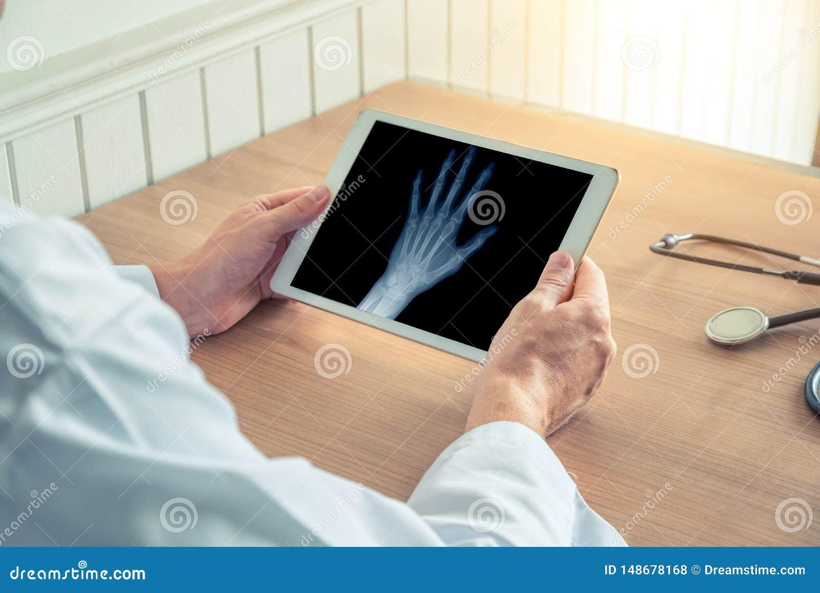 Doutor que guarda uma tabuleta digital com raio X de uma m?o esquerda Conceito da osteodistrofia