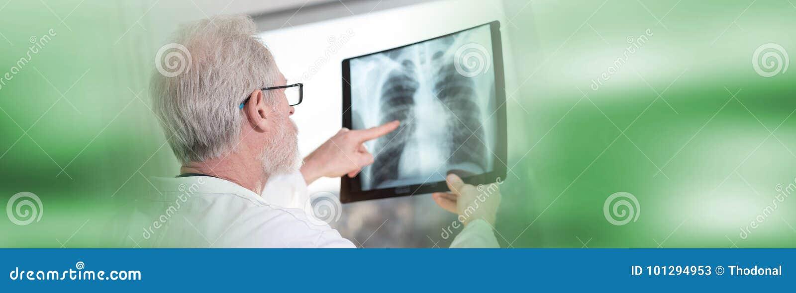 Doutor que olha o raio X