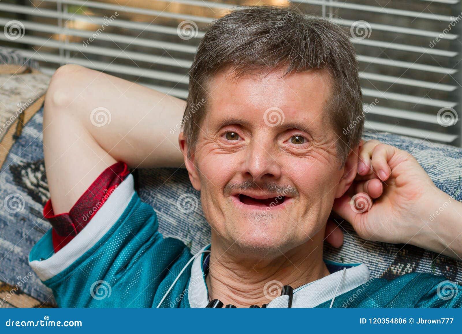 Zähne ohne alter mann Dritte Zähne