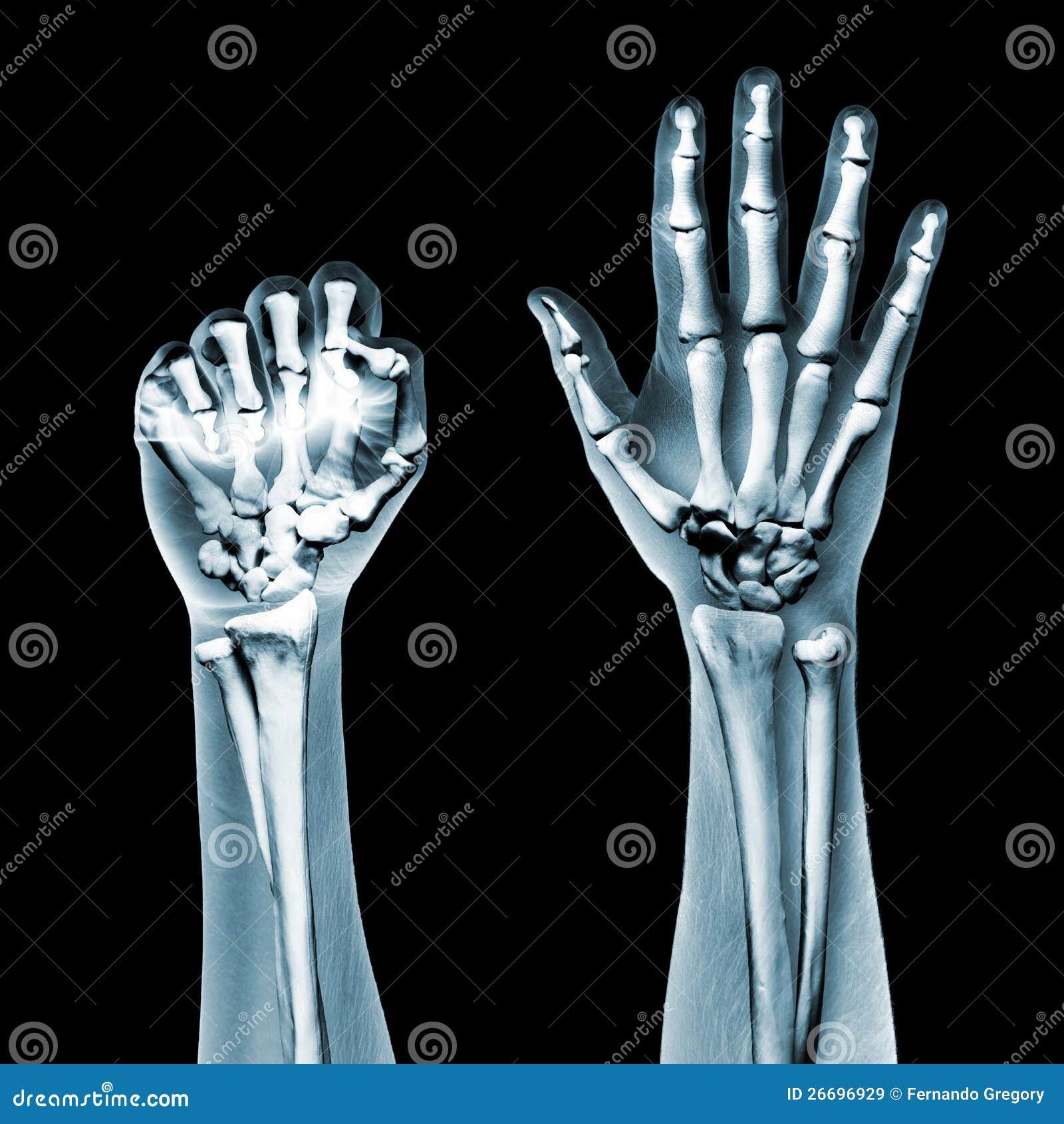 dramatized x ray of a hand on black royaltyfree stock